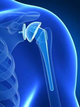 3d rendered illustration of a shoulder replacement